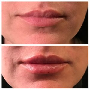 lip fillers before and after