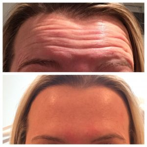 Botox Forehead Wrinkles before & after