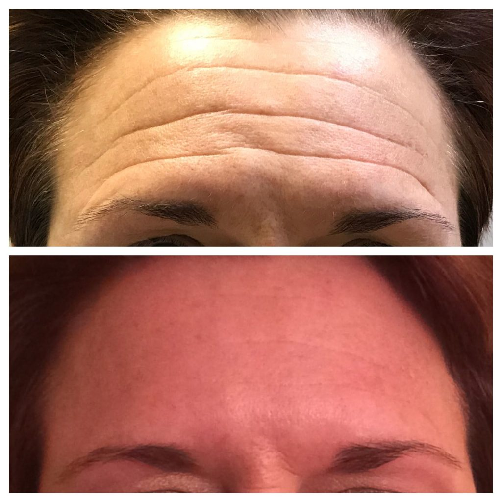 Botox forehead wrinkles before and after