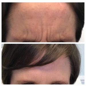 forehead before and after