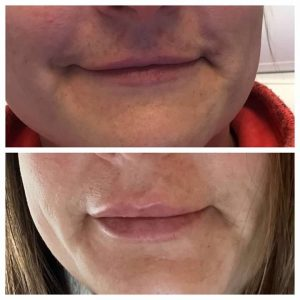 before and after fillers