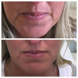 before and after filler lips